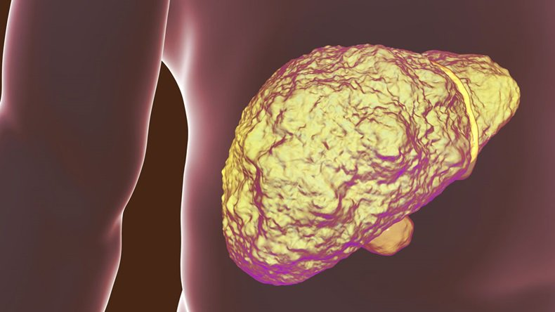The treatment of liver cancer will have a makeover